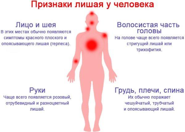 Різнобарвній лишай.  Симптоми и лікування, препарати, мазі, спреї, таблетки