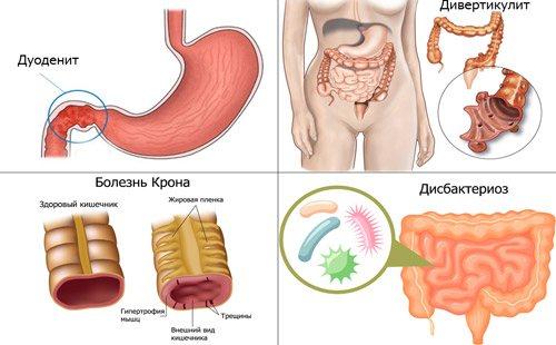 Різновиди хвороб кишечника