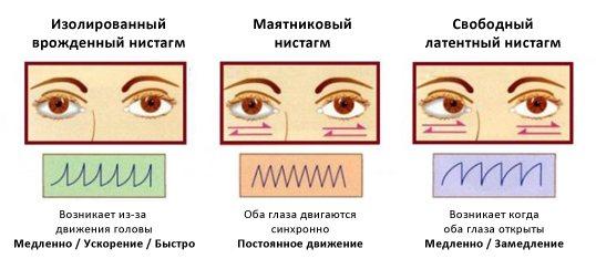 Різновиди і особливості горизонтального ністагму