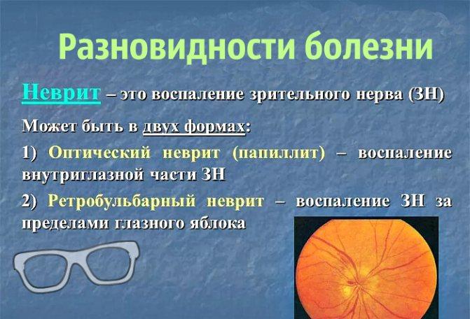 Різновиди зорового невриту