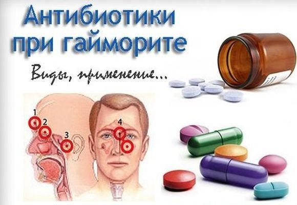 різні антибіотики при гаймориті