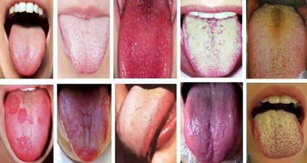 Різні кольори язику