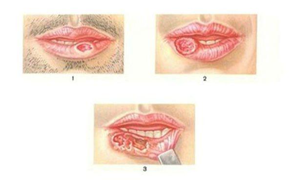 різні види раку губи
