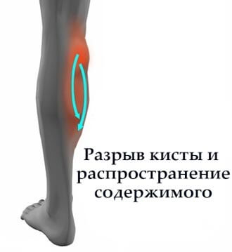 розрив кісті Беккера и Поширення синовіальної Рідини по гомілці