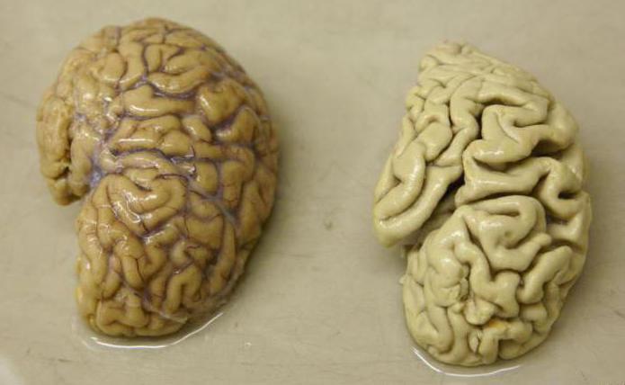 розвиток хвороби Альцгеймера