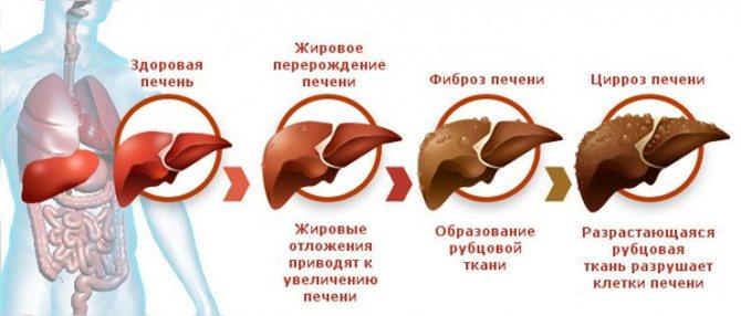 Розвиток фіброзу печінкі від здорової печінкі до цироз