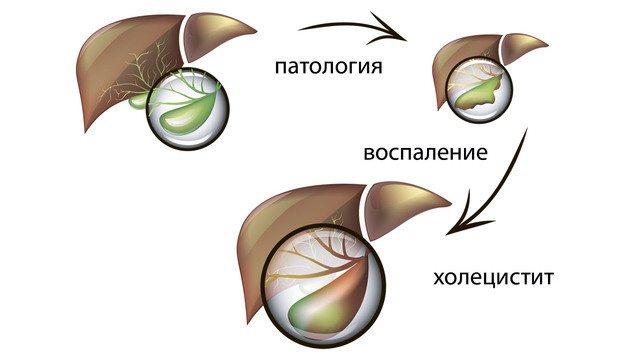 розвиток холециститу