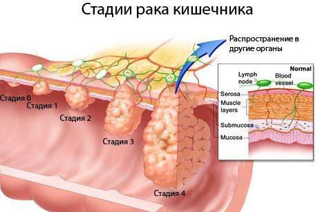 Розвиток раку кишечника