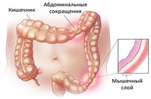 розвиток синдрому роздратованого кишечника