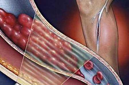 розвиток тромбофлебіту, фото