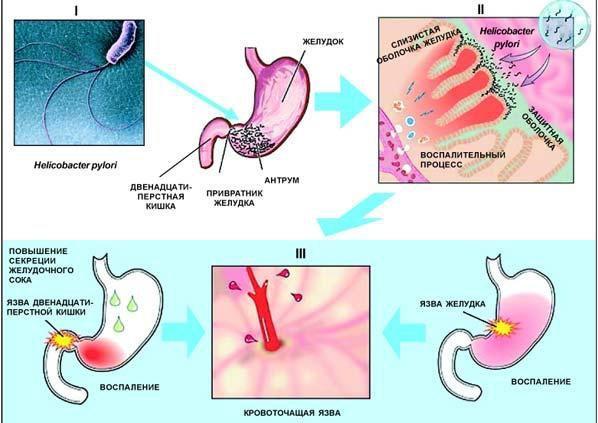 Розвиток виразкової хвороби шлунка