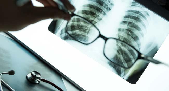 рентген-діагностика легенів