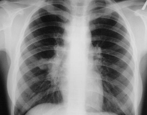 Рентген грудної клітини