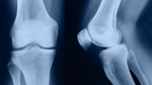 Рентген коліна