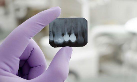 Рентген-знімок зубних коренів