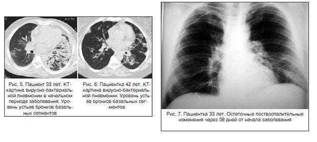 рентгенограма