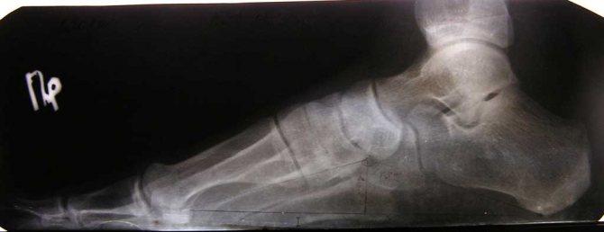 Рентгенологічне дослідження плоскостопості