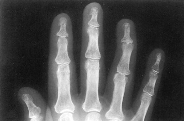 Рентгенологічне дослідження суглоба