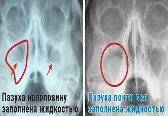 Рентгенівські знімки при запаленні пазух носа