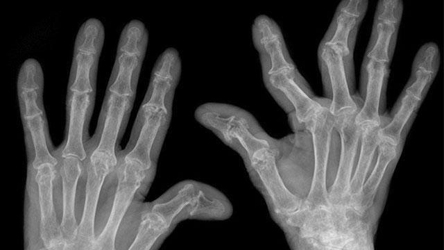 рентгенівський знімок рук, уражених артритом