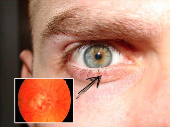 ретиніт