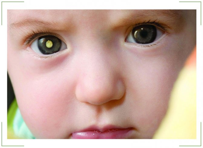 ретинобластома