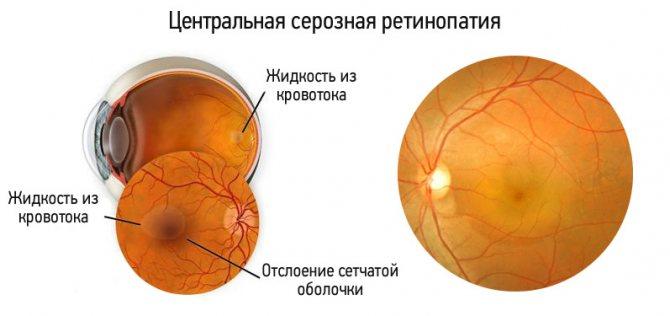 ретинопатія