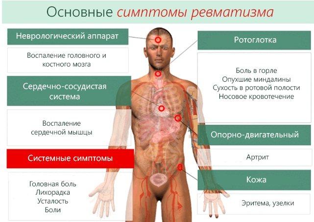 Ревматизм. Симптоми і лікування у дорослих, дітей, народні засоби, препарати