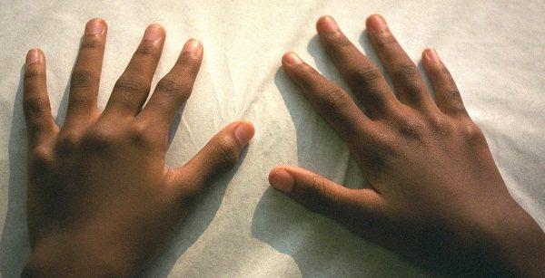 ревматоїдний артрит у дитини фото