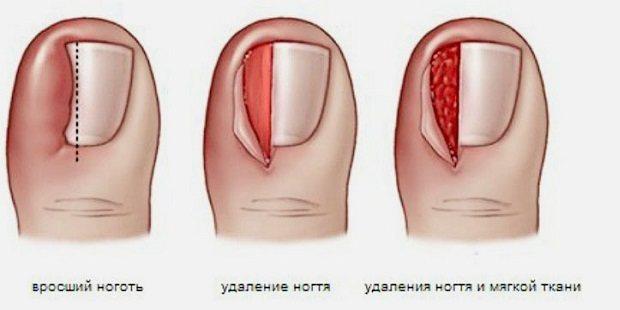 Резекція нігтьової пластини