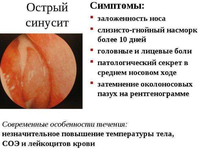 Риносинусит.  Симптоми и лікування у дорослих, дітей: Гостра, хронічній, поліпозній, гнійній, катаральні