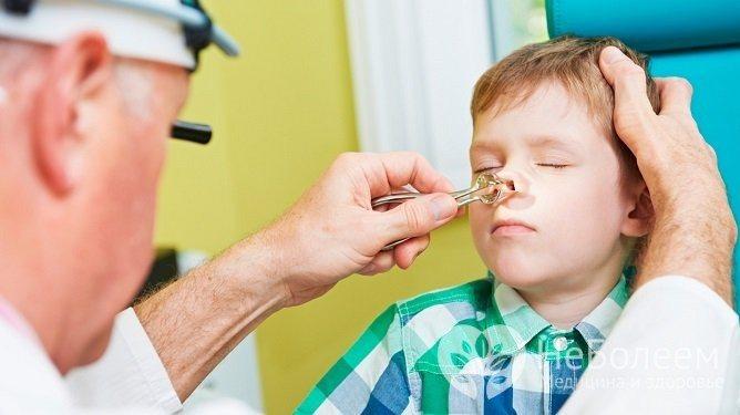 Ріноскопія дозволяє віявіті аденоїдіт и оцініті его степень