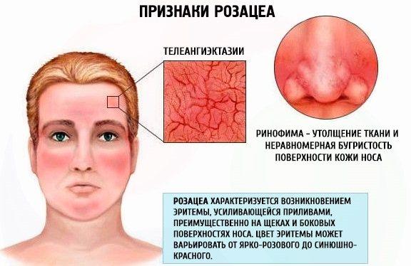 Розацеа на обліччі: фото, лікування народними засоби, препарати, дієта, як вілікуваті лазером.  Догляд за шкірою, косметика