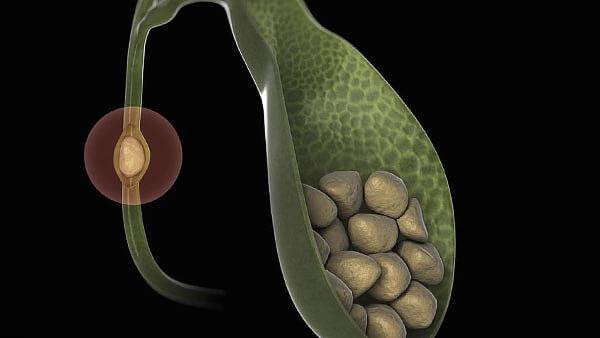 Вважається, що ромашковий відвар може стимулювати викид жовчі з частиною дрібних каменів з жовчного міхура, а отже, і очищення його.