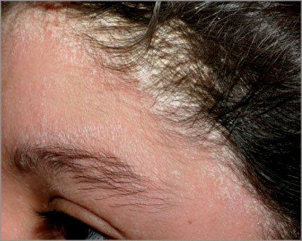 Себорейний псоріаз голови