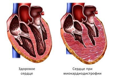 Серце при міокардіодистрофії в розрізі