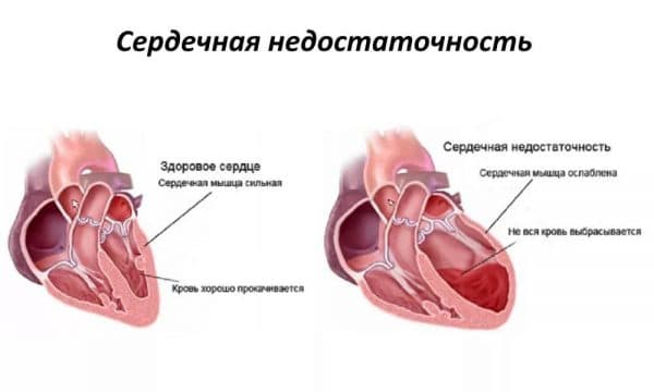 Серцево-легенева недостатність