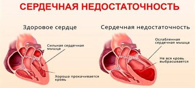 Серцево-судинні патології як джерело болю