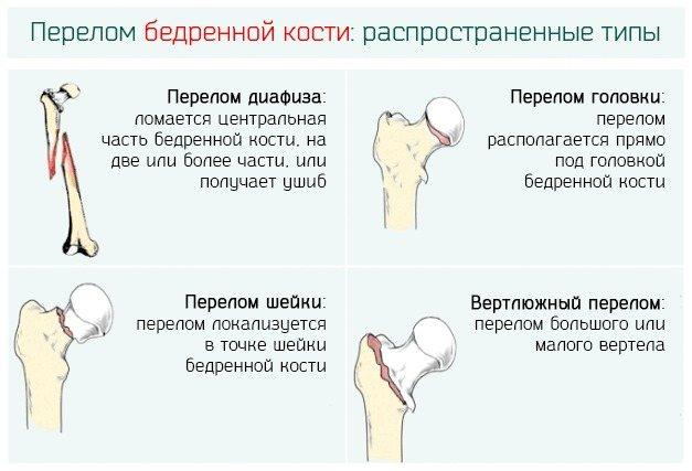 Шийка стегна. Де знаходиться у людини, симптоми перелому, тріщини, некрозу, вивиху, лікування, операція, реабілітація