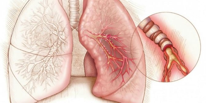 Схема емфіземі легенів