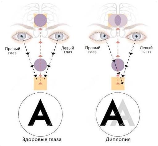Схема монокулярной диплопии