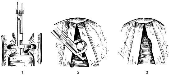 Схема операции з відалення вузліків