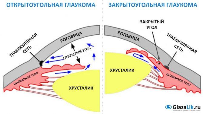 схема відмінностей глаукоми від відкрітокутовій