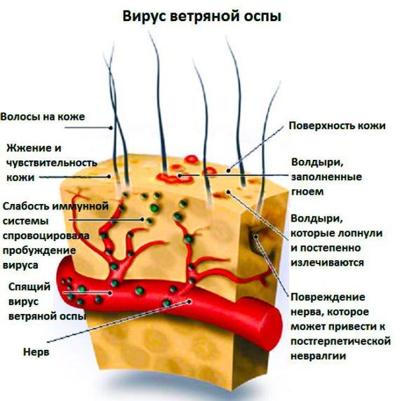 Схема вірусу віспи