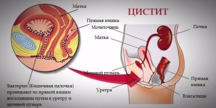 Схематичний опис хвороби