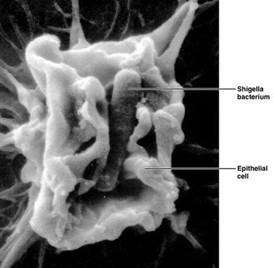 шигелла в складках слизової оболонки