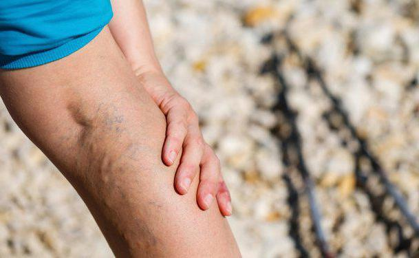 сильна ломота в ногах