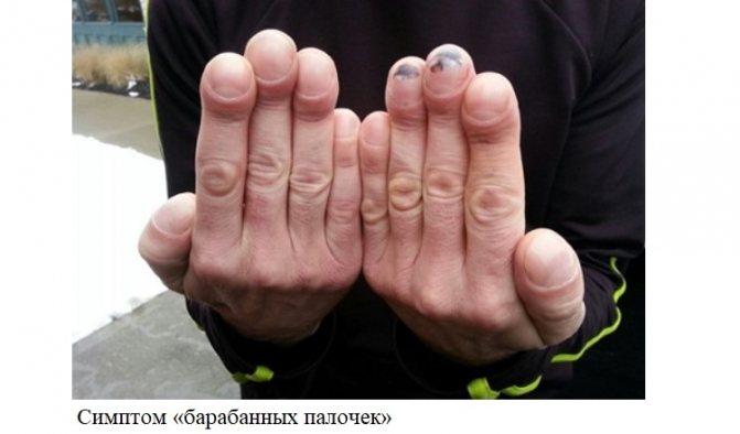 Симптом «барабанних паличок»