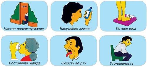 Симптоматика СД 1 типу