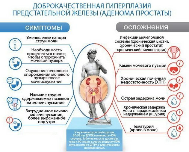 симптоми аденоми передміхурової залози